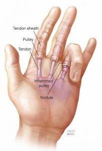 Stiff finger